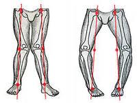 как определить прямые ноги фото