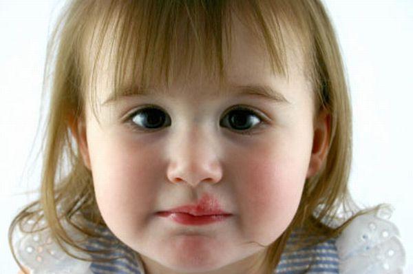 Как лечить простуду на губах у детей?